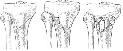 tibial plataeu fractures